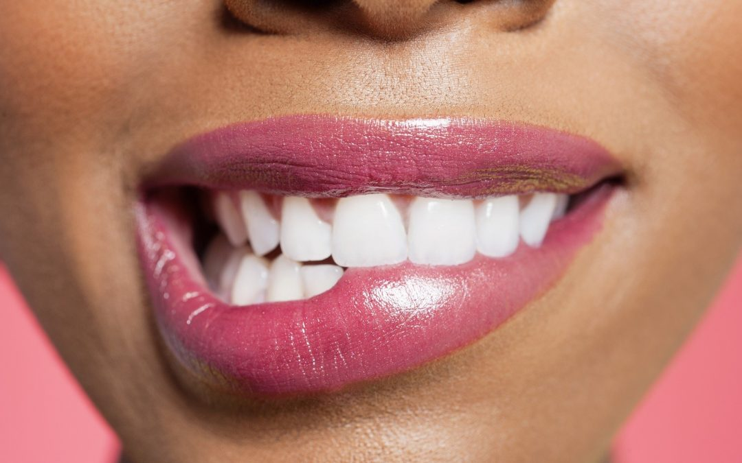 Cost-Effective Professional Tooth Whitening
