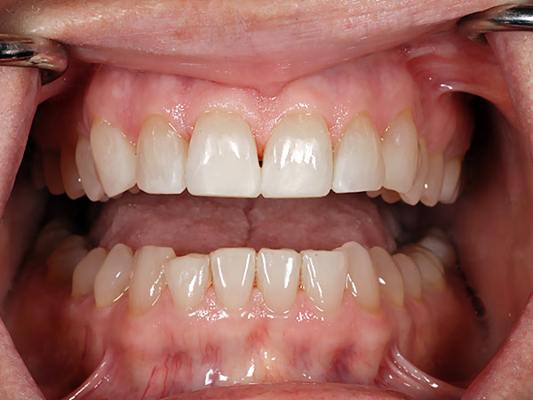 Picture of well aligned teeth after treatment at Petinge Dental