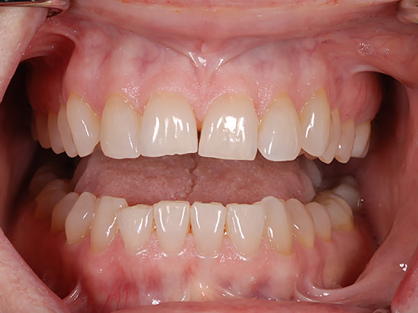 Picture of unaligned teeth before dental treatment at Petinge Dental