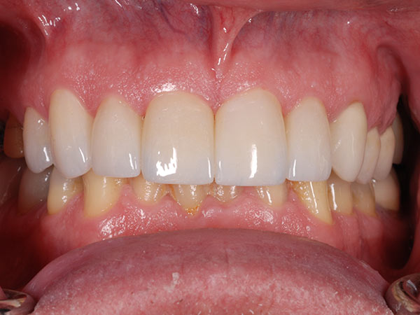 Picture of new teeth after treatment at Petinge Dental