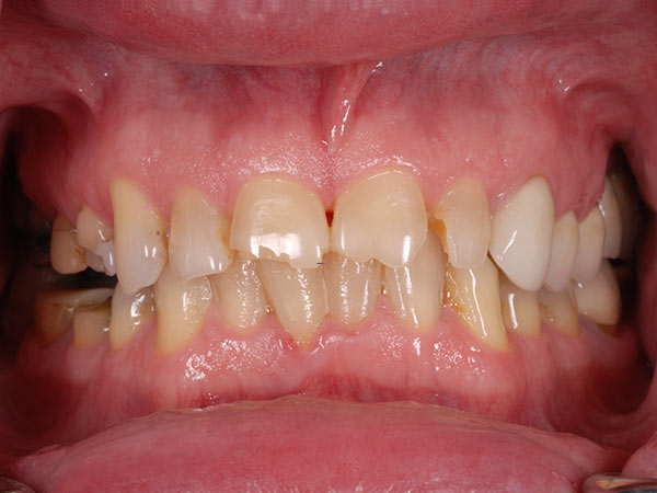 Picture of teeth before treatment at Petinge Dental