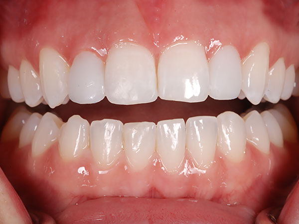 Picture of neat even teeth after treatment at Petinge Dental