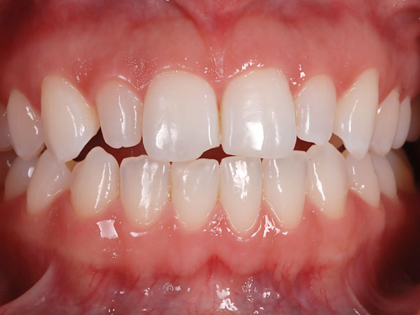 Picture of chipped teeth before treatment at Petinge Dental