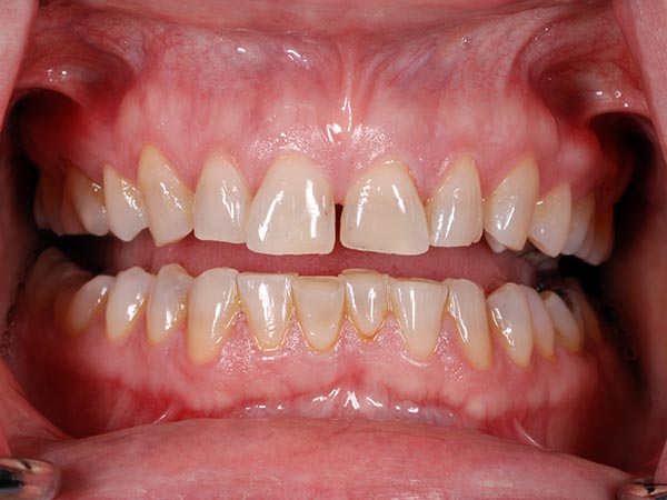 An image of a patients teeth before treatment at Petinge Dental