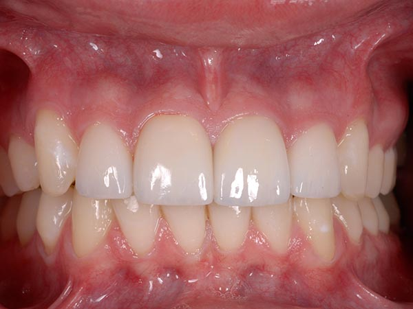Pictured of teeth with no trace of bad tooth patient after treatment at Petinge Dental