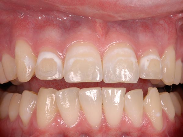 Pciture of a bad tooth showing before dental treatment at Petinge Dental